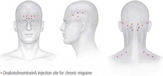 migraine-injection-sites