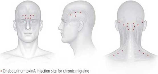 migraine-injection-sites